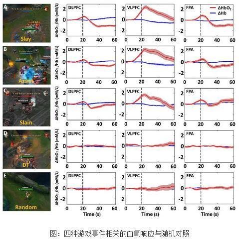 电子游戏相关脑功能活动实时监测研究进展