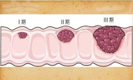 大肠癌微环境的关键免疫调控机制及其干预研究