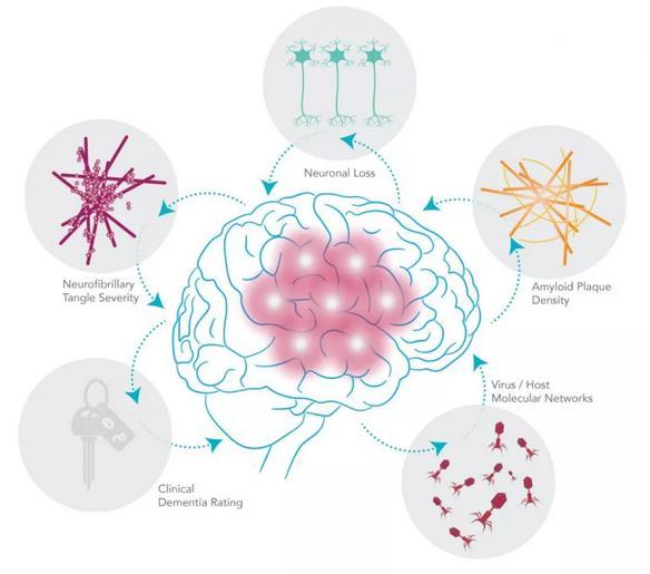 发现:阿兹海默病可能与病毒感染有关