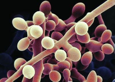 发掘真菌基因组,一种天然除草剂的新作用机理