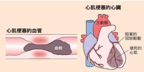 一种可以帮助心肌梗塞患者的特殊装置,直接向心脏给药