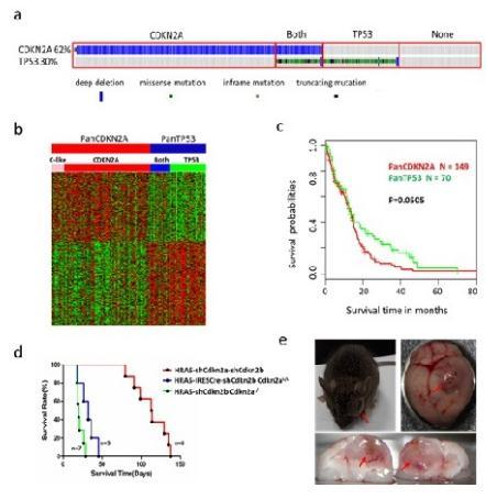 胶质母细胞瘤分型、遗传突变的多样性研究进展