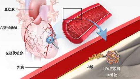 瑞百安®注射液:中国首个用于治疗HoFH的PCSK9抑制剂获批上市