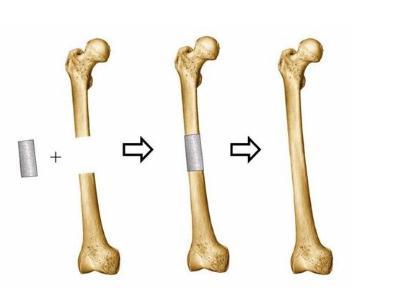 润泽医药:成功研发人造骨的多级多孔钽材料
