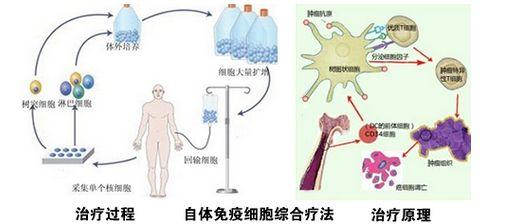 食管癌发病率和死亡率、临床研究进展