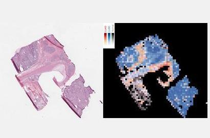 新AI医疗技术可使肺癌诊断准确率达97%
