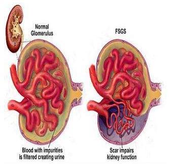 FSGS:中医药治疗原则、效果及临床应用现状