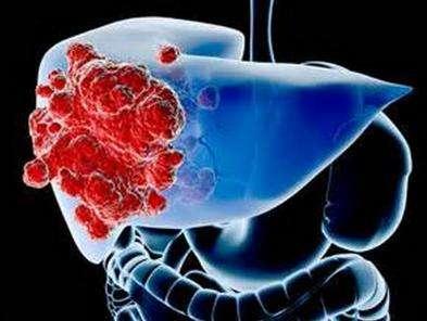 SIRT6的首个具有功能的变构激动剂MDL-800可抑制肝癌增殖