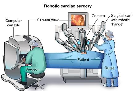 """英国首例机器人心瓣修复手术因机器人""""暴走""""导致病人死亡"""