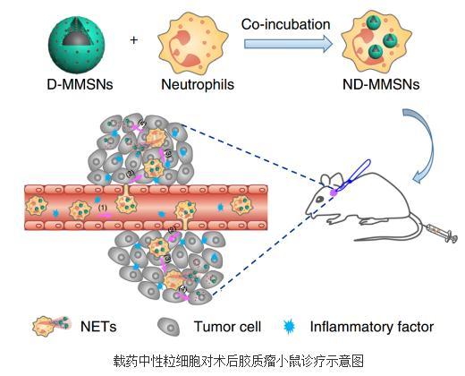 磁共振影像示踪的中性粒细胞药物输运体系靶向治疗术后脑胶质瘤