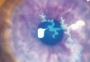 经常揉眼睛的坏处,如何保护眼睛?