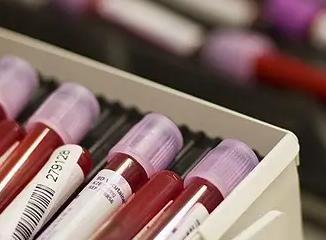 血液检测能预测肺癌患者对治疗有何反应