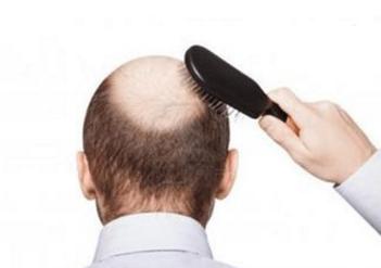 男人脱发检查哪些项目?男人如何预防脱发?
