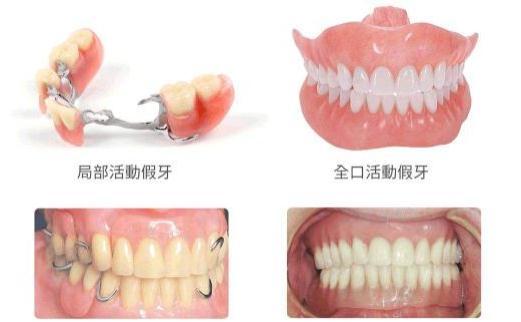 活动假牙的优缺点、怎么带,活动假牙清洁注意事项