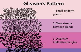 谷歌开发出的一种AI系统可对前列腺癌细胞进行分级