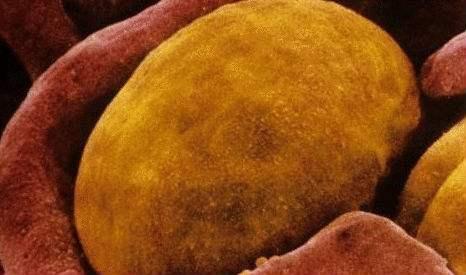 研究人员发现棕色脂肪有控制食欲的功能,有望用于新型减肥疗法的开发