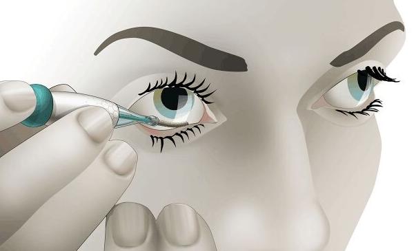 荷兰Noviosense初创公司研发了研发2cm泪液葡萄糖传感器