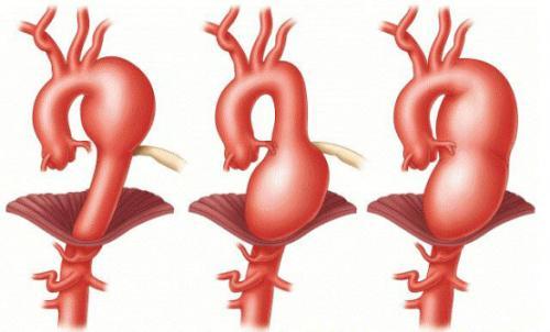 美敦力发布Heli-FX EndoAnchor系统,可治疗复杂主动脉腹部动脉瘤