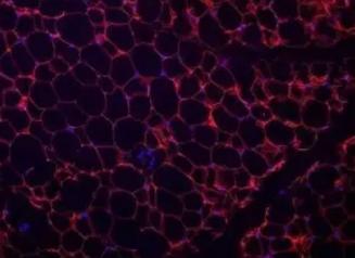 哥伦比亚大学研究人员发现了引发肥胖的关键基因———14-3-3ζ蛋白质
