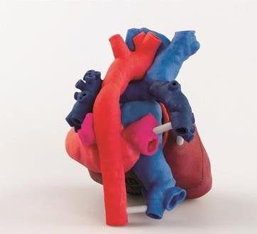 3D Systems与OpHeart合作,为心脏外科医生提供3D打印患者心脏复制品