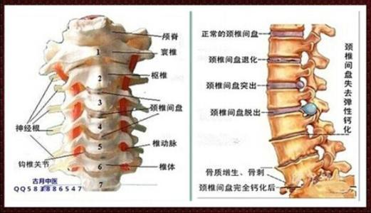 按摩颈椎会导致瘫痪,正确认识颈椎病