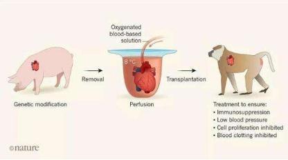 基因改造的猪心脏成功移植进狒狒体内