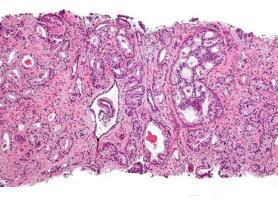 有炎症性肠病的男性患前列腺癌的风险增加5倍