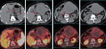 三种新的放射性示踪剂分子,有效增强正电子放射断层造影术扫描效果