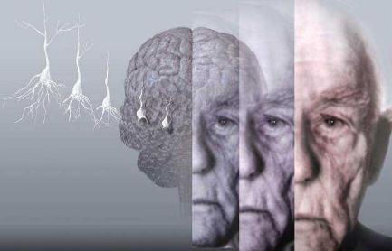阿尔茨海默症会传染吗?传染途径是什么?