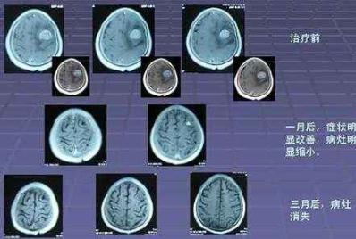 afatinib对于非小细胞肺癌脑转移瘤的抑制作用