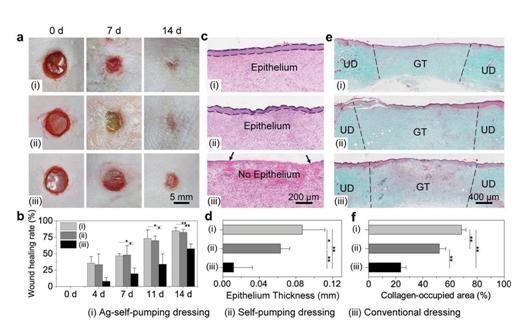 一种由亲水微米纤维网络与疏水纳米纤维阵列复合的伤口敷料