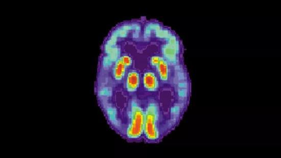 ?科学家利用AI诊断出老年痴呆,效率远超人类