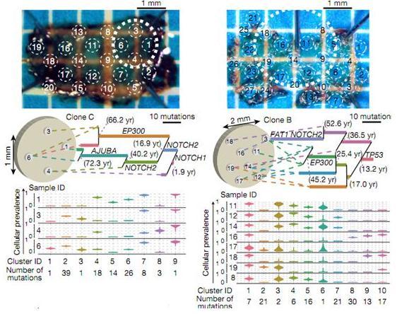 食管鳞状细胞癌:发生增殖的克隆细胞的超微结构、进化历史