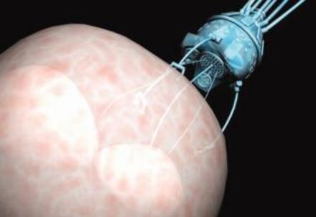 柔性机器人在医学方面应用最新研究进展