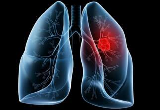 麻省理工学院生物学家发现了或可解释熬夜增加患癌风险的关联