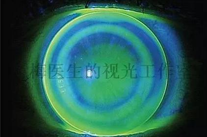 一文了解角膜塑形镜的利与弊、应用效果