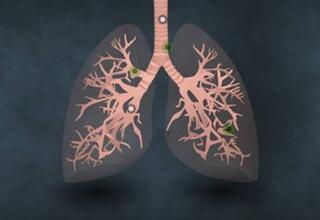 首尔大学最新研究:阐明了吸烟和长期精神压力引发肺癌的生物学机理