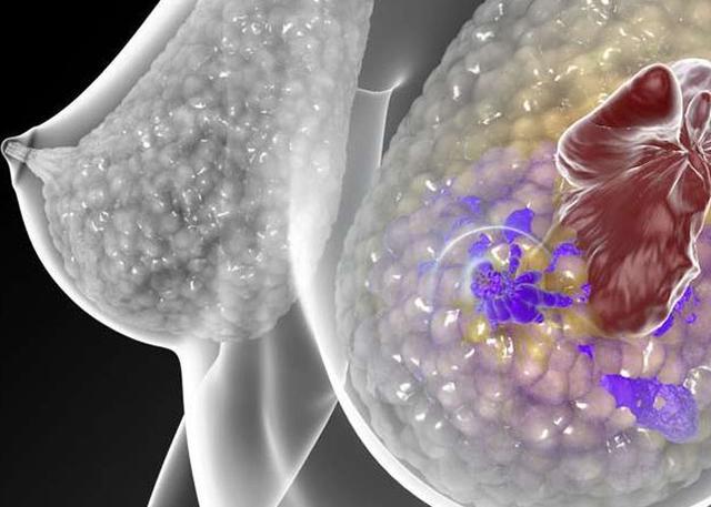 德国开发出新型乳腺癌血液检测法