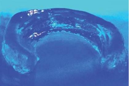 MIT赵选贺团队揭示了抗疲劳水凝胶的设计原理及应用