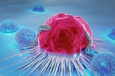 糖浆会促进肿瘤生长