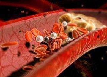 高胆固醇摄入或会显著增加心血管疾病风险