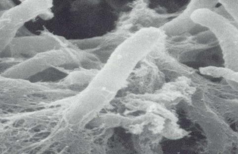 乳酸杆菌细胞膜结构特征、作用及对微生态制剂的影响