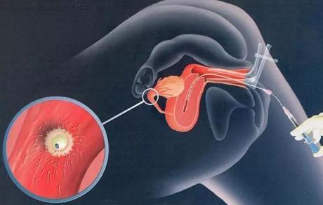 """""""三父母""""婴儿:线粒体移植技术应用于辅助生殖引争议"""