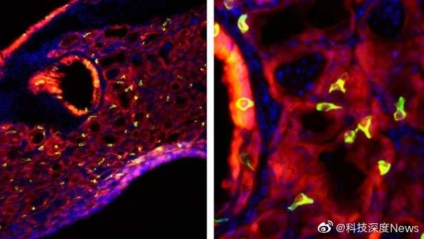 """""""味蕾细胞""""似乎在严重的流感病例后在肺部生长"""