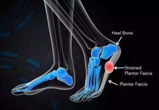 什么是足底筋膜炎?足底筋膜炎的治疗方法