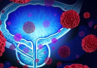 导致前列腺癌发病率升高的原因有哪些?如何预防前列腺癌
