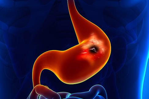 胃癌靶向治疗的现状与未来发展趋势展望