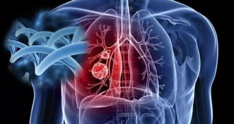 肺癌、卵巢癌防治方案(附防治癌症7个建议)