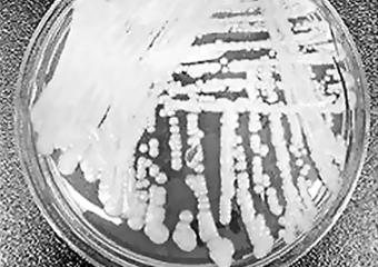 耳念珠菌肆掠全球,死亡率高达60%