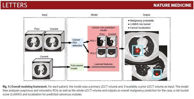 谷歌人工智能肺癌检测系统检测准确率达94%,比医生早一年查出肺癌